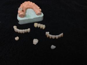 Dental Crowns & Bridges in Philadelphia PA
