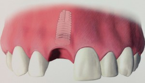 Tooth Replacement Procedures in Philadelphia PA